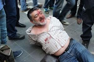 Polis gazetecinin önce burnunu kırdı, sonra gözaltına aldı