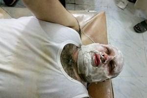 Halep'teki AA muhabiri füze saldırısında yaralandı