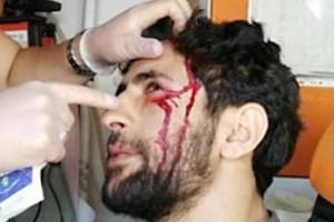 DİHA muhabiri polisin sıktığı gaz fişeğiyle yaralandı!