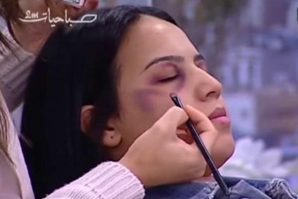 Devlet televizyonunda kadına şiddeti 'makyajla kapatma' dersi!