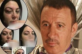 Mustafa Topaloğlu ile dövdüğü eşi Derya Topaloğlu barıştı mı?