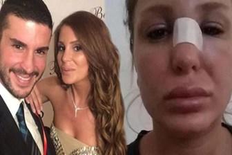Berk Oktay'ın eşinden şoke eden paylaşım: Kocam beni dövdü, yardım edin!