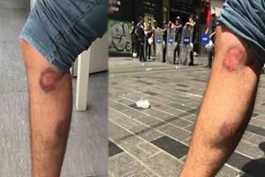 DHA muhabirine, görevi sırasında gazlı mermili saldırı